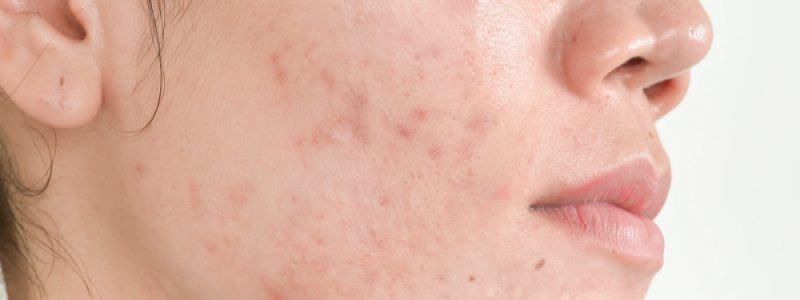 acne-treat-afb